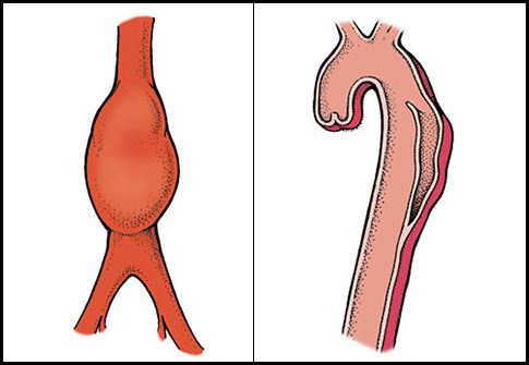 aortic aneurysm vs aortic dissection
