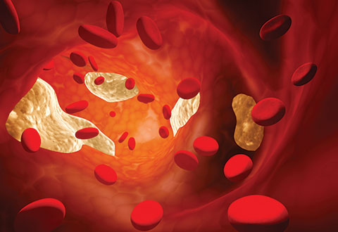 All You Need To Know About Anticoagulants