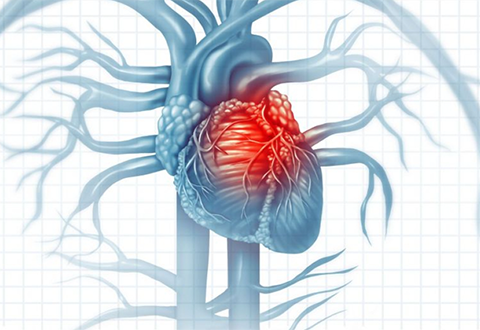 Treating rare heart disease – ATTR-CM