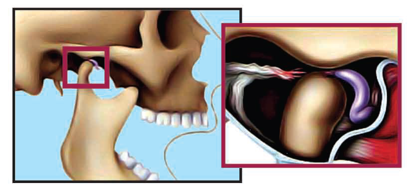 Abnormal Temporomandibular Joint