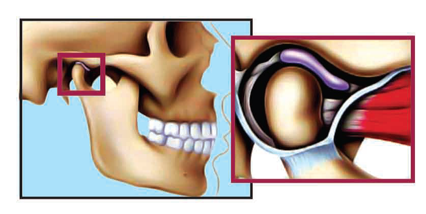 Temporomandibular Joint in Normal Closed Position