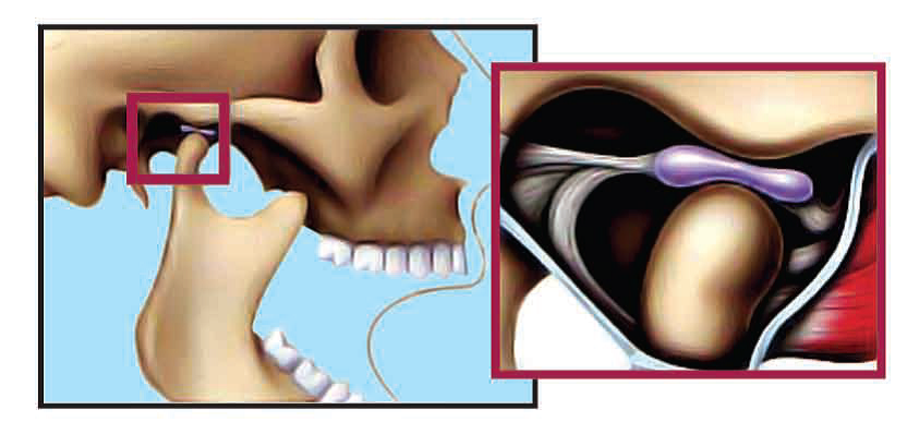 Temporomandibular Joint in Normal Open Position